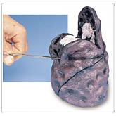 흡연자의 폐 모형