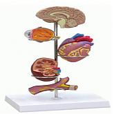 고혈압 모형 (G37)