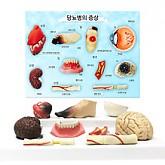 당뇨병에 의한 질병(3D)