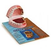 치아비교모형